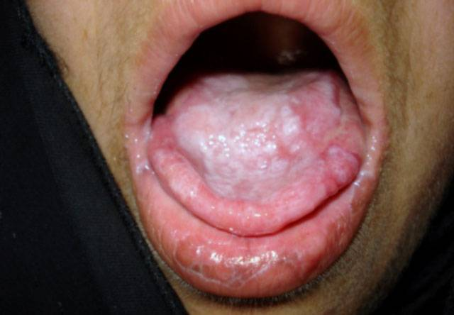 all causes of cold sores on lips
